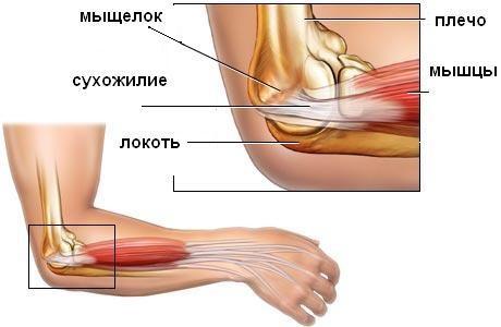 Лечение локтевого и плечевого суставов препараты для поддержания замененного коленного сустава